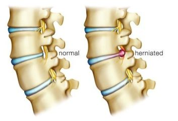 """""""A herniated disk can irritate nearby nerves and result in pain, numbness or weakness in an arm or leg."""" -Mayo Clinic"""